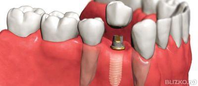 Цены на зубные импланты в минске